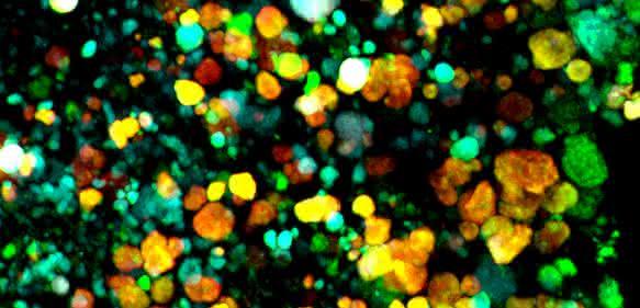 Bioinformatik und Mikrobiom: Prüfverfahren für Analyse-Software entwickelt