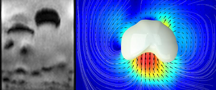 Schüttgüter: Dynamik granularer Systeme blitzschnell erfasst