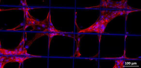 Vorläuferzellen des Stütz- und Bindegewebes auf einem Konstrukt aus biologisch abbaubarem Kunststoff