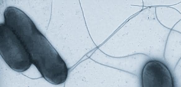 Salmonellen (Bild: HZI/Manfred Rohde)