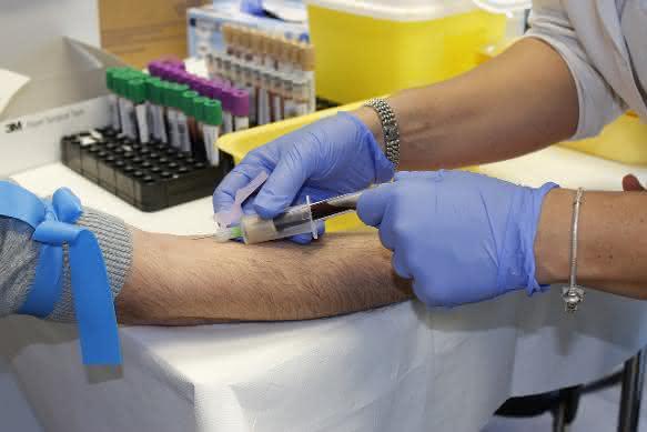 Chemotherapie - ja oder nein?: Biomarker zeigen Aggressivität des Tumors an