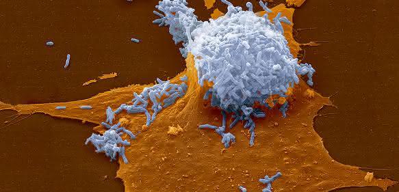 Bakterielle Fitness: Domestizierte Viren sorgen für Gentransfer bei entspannten Bakterien