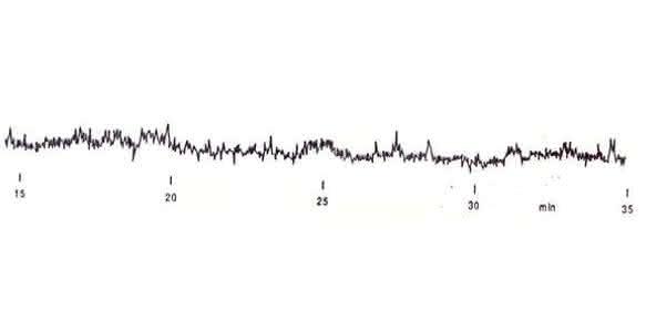 HPLC-Tipp: Zum Inneren eines UV-Detektors