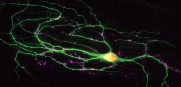 Eine fluoreszierende Nervenzelle (grün) in einer Zellkultur. An den rosa gefärbten Synapsen kommuniziert die Zelle mit ihren Partnern. (© MPI f. experimentelle Medizin)