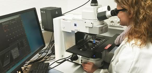 DNA-Schäden werden mikroskopisch analysiert