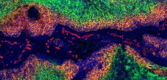 Gebärmutterhalskrebs: In den grün gefärbten Bereichen des Tumors herrscht Sauerstoffmangel. Dort bilden die Krebszellen kein HPV-E7 (orange). Zellkerne sind blau, Blutgefäße rot markiert. (© Dr. Arnulf Mayer, Universität Mainz)