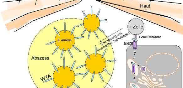 Das Zellhüllen-Zuckerpolymer Wandteichonsäure (WTA) von Staphylococcus aureus spielt bei der Entwicklung von Hautinfektionen eine Rolle.