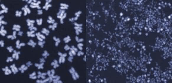 Menschliche Chromosomen im Mikroskop. Auf dem linken Bild sind die Chromosomen intakt, das rechte Bild zeigt kleingeschnittene Chromosomen aus Zellen, in denen das Enzym MUS81 unkontrolliert aktiv war. (Bild: ETH Zürich / Jiradet Gloggnitzer)
