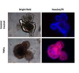 In der Zellkulturschale gezüchtete intestinale Organoide, in welchen mittels TNF-α Zelltod ausgelöst wurde. Die Anreicherung von roten Zellen belegt die Zelltod-auslösende Wirkung von TNF-α in den intestinalen Epithelzellen.