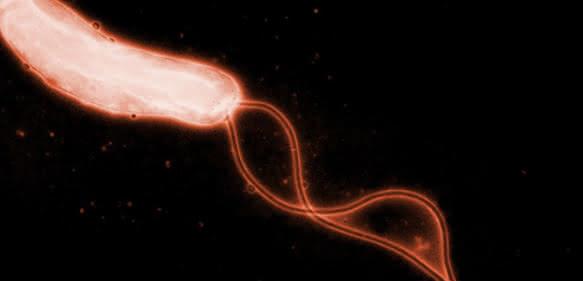 Helicobacter pylori. (Bild: R. Haas, Max von Pettenkofer-Institut)