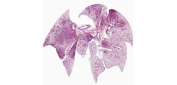 Lungenschnitt nach Ko-Infektion durch Influenza A-Viren und Pneumo-kokken. Die Färbung zeigt die ausgeprägte Entzündungsreaktion: Die entzündeten Areale der Lunge mit vielen eingewanderten Immunzellen sind als dunkle Verfärbungen zu erkennen. © HZI