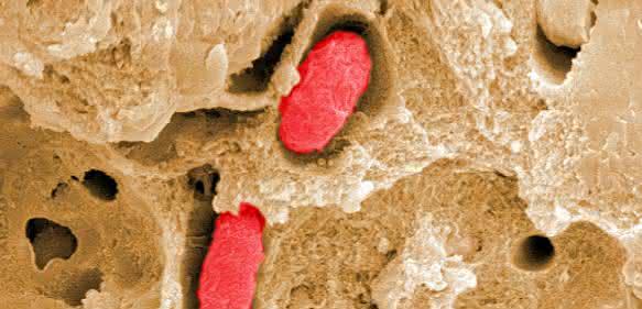 Salmonellen in abgestorbenem Tumorgewebe. HZI/ Manfred Rode