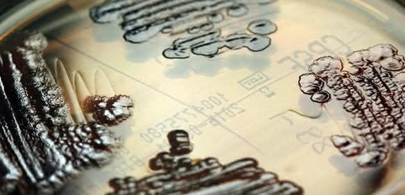 Multiresistente Enterobakterien in einer Petrischale nachgewiesen © IMMIH, Köln/Hamprecht