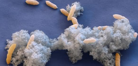 Eisen(III)-redzuierende Bakterien Geobacter sulfurreducens lagern Elektronen auf Magnetit-Nanopartikeln ab. (Elektronenmikroskopische Aufnahme: Eye of Science, Reutlingen)