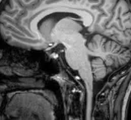 Magnetresonanztomographische Aufnahme eines Schädels (Hirnscan). (Foto/Copyright: Klinik für Radiologie und Neuroradiologie, UKSH, Campus Kiel)