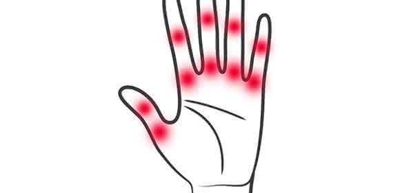 Rheumatoide Arthritis führt zu starken chronischen Gelenkentzündungen. FAU-Wissenschaftler haben nun einen Mechanismus entdeckt, mit dem sich die Entzündungen hemmen lassen. (Bild: Medizinische Klinik 3 der FAU)
