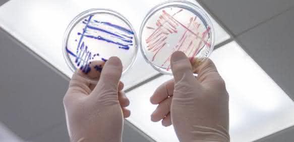 Nachweis von Escherichia coli und coliformen Bakterien