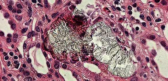 Absterben von Zellen