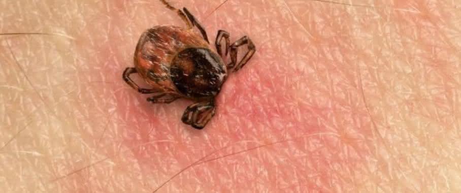 Sensitive und spezifische Diagnose im Frühstadium: Lyme Borreliose