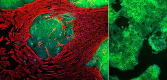 Brustkrebszellen