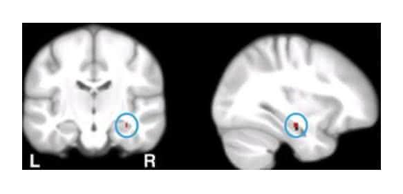 Hippocampus: Hippocampus: Wissenschaftler der Universität Basel haben nachgewiesen, dass Gedächtnisfunktionen von Calcium-Genen abhängen