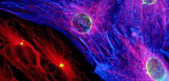 Herzmuskelzellen
