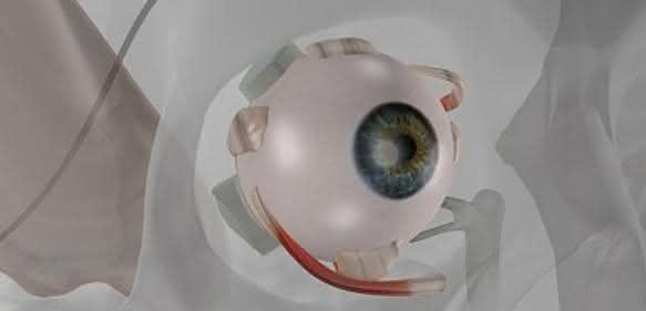 Auge mit Implantat