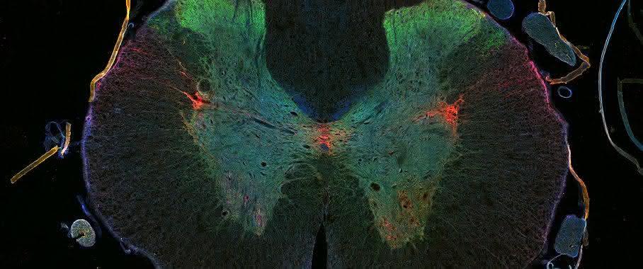 Querschnitt Rückenmark (Ratte)