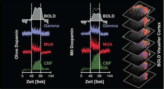 BOLD-Signal