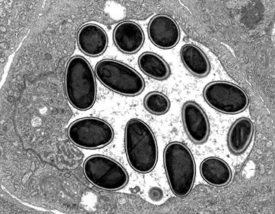 Zwischen Pilz und Parasit: Forscher erklären die Evolution extremer Parasiten