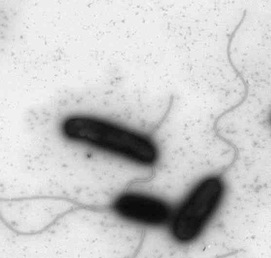 Cholera-Erreger