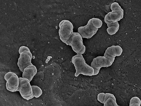 Knallgas-Stoffwechsel: Bakterium mit Knall-Effekt