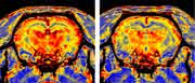 Autoantikörper: Schädigen auch Mikrogefäße im Gehirn