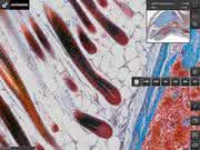 """""""OlyVIA Mobile"""" für das iPad: Virtuelle mikroskopische Bilder stets zur Hand"""