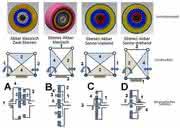 Exzentergetriebe: Varianten-Vergleich
