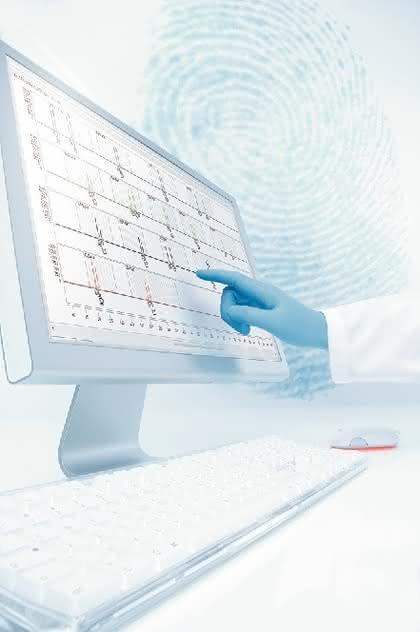STR-Analyse-Kit Investigator ESSplex Plus: PCR-basierte STR-Analyse