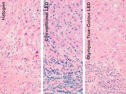 Mikroskopsysteme BX3: Immer im rechten Licht