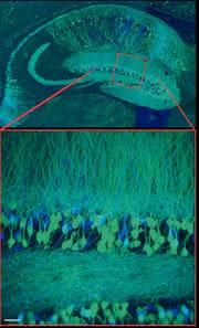 Mikroskopie-Systeme: Wenn Nervenfasern  leuchten