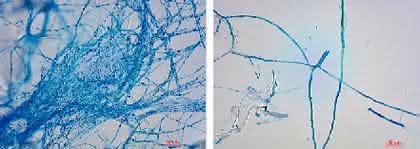 Mol Clean: Prozesswasser besser aufbereiten beim Granulieren