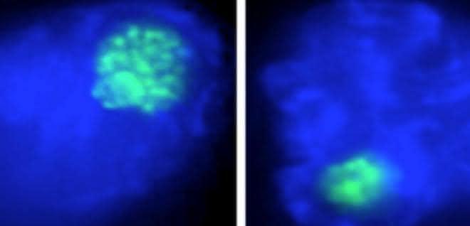 Der Nukleolus (in grün) von Makrophagenzellen schrumpft bei einer bakteriellen Infektion (links: nicht infizierter Makrophage, rechts: bakteriell infizierter Makrophage).