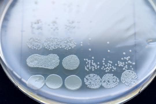 Agarplatte mit Verdünnungsreihe einer Bakterienprobe nach Ende der Behandlung