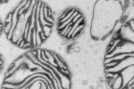 Die Mikroskop-Aufnahme zeigt Mitochondrien, die auch als Kraftwerke der Zellen bekannt sind.