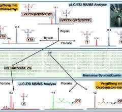 Biomarker aus humanen Serumalbumin-Addukten
