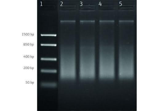 Bild 1: Agarose-Gel-Elektrophorese von extrahierter DNA aus gefrorenen Garnelenproben. Reihe 1: DNA-Leiter; Reihe 2–5: Proben 1–4.