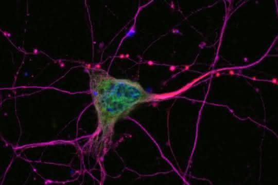 Mikroskopische Aufnahme von Neuronen