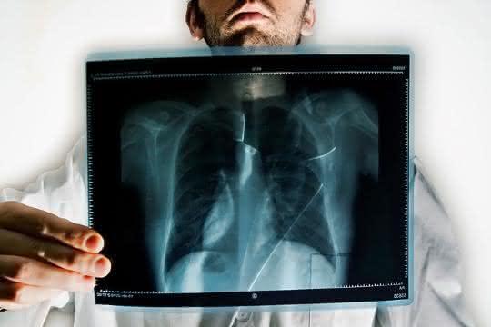 Untersuchungen am 3D-Lungenmodell: Was macht Graphen in der Lunge?