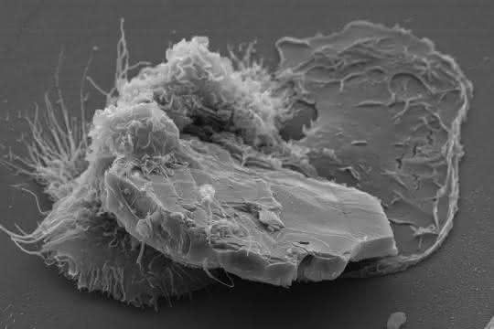 Rasterelektronenmikroskopische Aufnahme eines menschlichen Makrophagen (Fresszelle), der versucht, ein Chitinpartikel im Mikrometerbereich (scheibenförmig vorn) aufzunehmen.