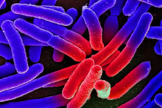 Elektronenmikroskopische Aufnahme von kultivierten Escherichia coli auf einem Objektträger, nachträglich koloriert.