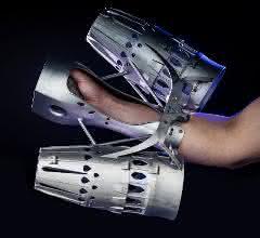 Armbefestigung mit additiv gefertigten Teilen