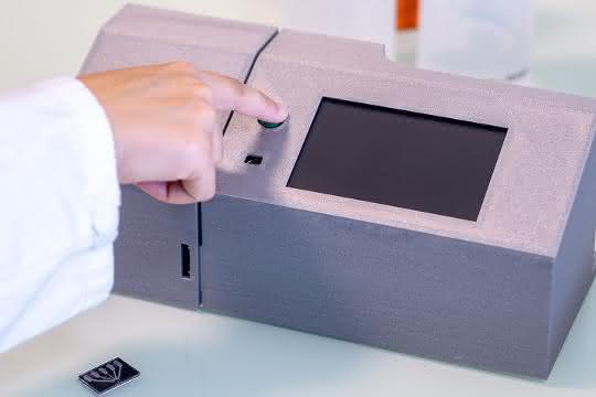 Ein Tropfen Blut aus dem Finger kann reichen, um schnell eine komplette immunologische Analyse durchzuführen.